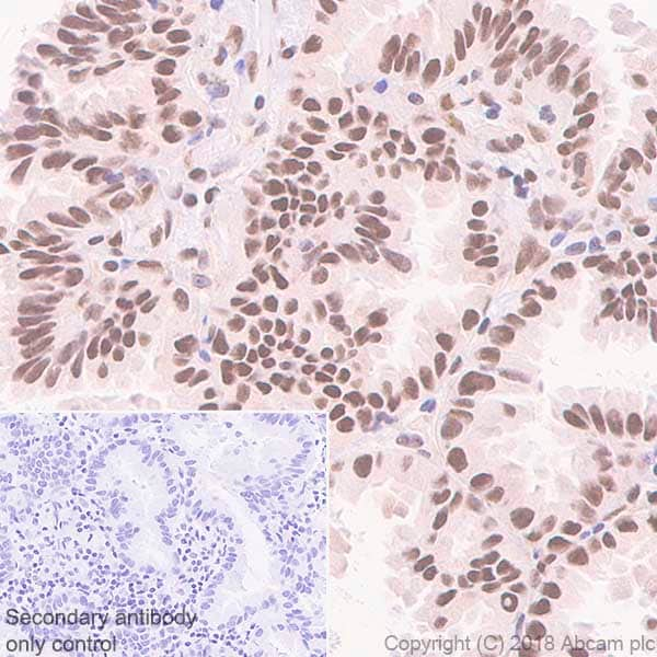 Immunohistochemistry (Formalin/PFA-fixed paraffin-embedded sections) - Anti-FTO antibody [EPR6895] (ab124892)