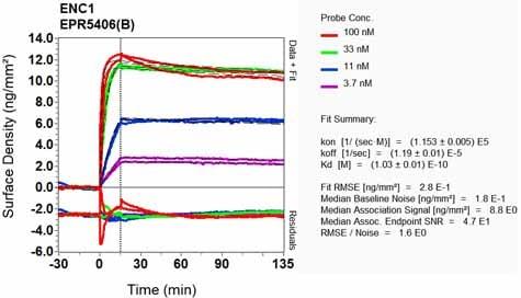 Other - Anti-ENC1 antibody [EPR5406(B)] (ab124902)
