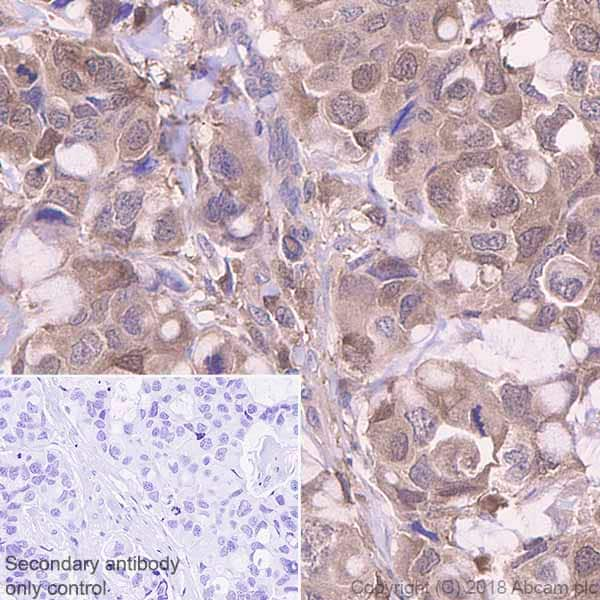 Immunohistochemistry (Formalin/PFA-fixed paraffin-embedded sections) - Anti-Profilin 1 antibody [EPR6304] (ab124904)