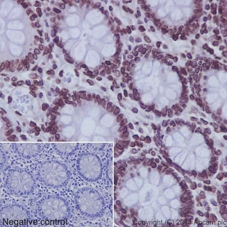 Immunohistochemistry (Formalin/PFA-fixed paraffin-embedded sections) - Anti-SUN2 antibody [EPR6557] (ab124916)