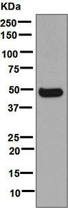 Western blot - Anti-Cytochrome P450 3A4/CYP3A4 antibody [EPR6202] (ab124921)