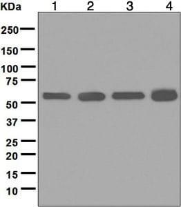 Western blot - Anti-Lipoamide Dehydrogenase antibody [EPR6634(B)] (ab124926)