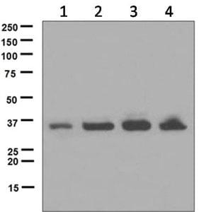 Western blot - Anti-UCH37 antibody [EPR4896] (ab124931)