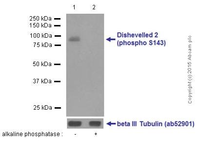 Western blot - Anti-Dishevelled 2 (phospho S143) antibody [EPNCIR145] (ab124933)