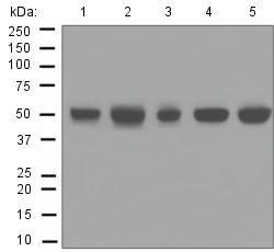 Western blot - Anti-ULK3 antibody [EPR4888] (ab124947)