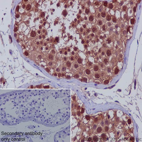 Immunohistochemistry (Formalin/PFA-fixed paraffin-embedded sections) - Anti-TXNRD1 antibody [EPNCIR129] (ab124954)
