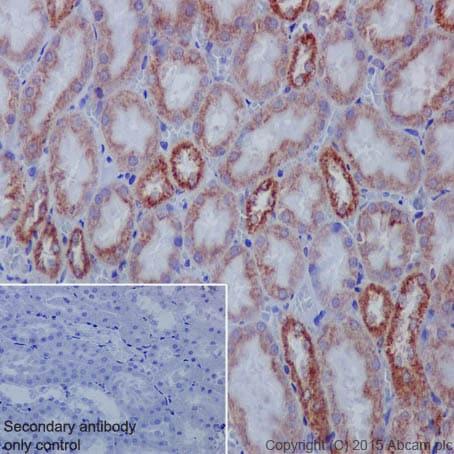 Immunohistochemistry (Formalin/PFA-fixed paraffin-embedded sections) - Anti-IL-1RA antibody [EPR6483] (ab124962)