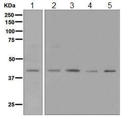 Western blot - Anti-NK-2R antibody [EPR6838(B)] (ab124998)