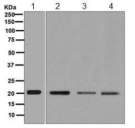 Western blot - Anti-UBE2C antibody [EPR5161(2)] (ab125002)