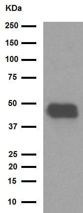 Western blot - Anti-Pentraxin 3/PTX3 antibody [EPR6699] (ab125007)
