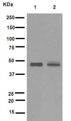Western blot - Anti-TSG101 antibody [EPR7130(B)] (ab125011)