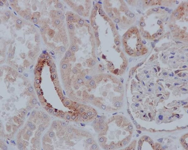 Immunohistochemistry (Formalin/PFA-fixed paraffin-embedded sections) - Anti-TSG101 antibody [EPR7130(B)] (ab125011)