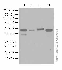 Western blot - Anti-IL-11RA antibody [EPR5446] (ab125015)