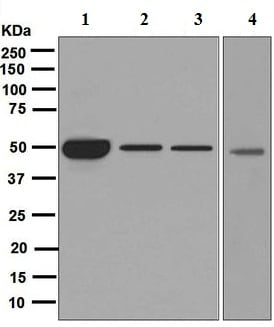 Western blot - Anti-Cytochrome P450 17A1/CYP17A1 antibody [EPR6293] (ab125022)