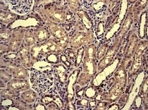 Immunohistochemistry (Formalin/PFA-fixed paraffin-embedded sections) - Anti-MYBBP1A antibody [EPR7204] (ab125026)