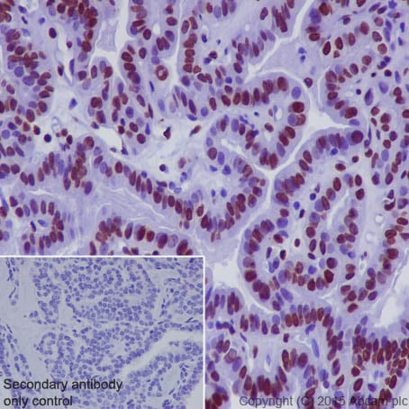Immunohistochemistry (Formalin/PFA-fixed paraffin-embedded sections) - Anti-Histone H1.0 antibody [EPR6537] (ab125027)