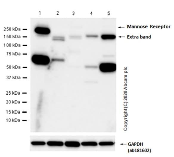 Western blot - Anti-Mannose Receptor antibody [EPR6828(B)] (ab125028)