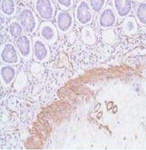 Immunohistochemistry (Formalin/PFA-fixed paraffin-embedded sections) - Anti-alpha smooth muscle Actin antibody (ab125044)