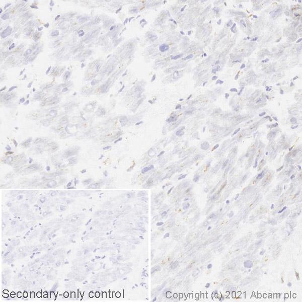 Immunohistochemistry (Frozen sections) - Anti-GBA antibody [EPR5142] (ab125065)