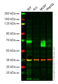 Western blot - Anti-GBA antibody [EPR5142] (ab125065)