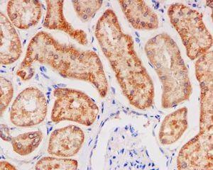 Immunohistochemistry (Formalin/PFA-fixed paraffin-embedded sections) - Anti-Glutathione Peroxidase 4 antibody [EPNCIR144] (ab125066)