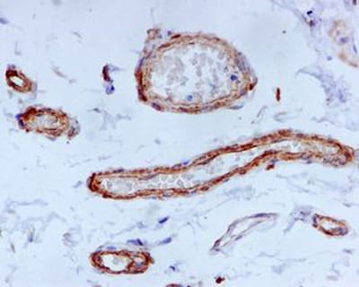 Immunohistochemistry (Formalin/PFA-fixed paraffin-embedded sections) - Anti-Fibulin-4 antibody [EPR684(2)] (ab125073)