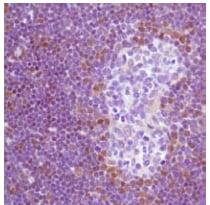 Immunohistochemistry (Formalin/PFA-fixed paraffin-embedded sections) - Anti-TdT antibody (ab125152)