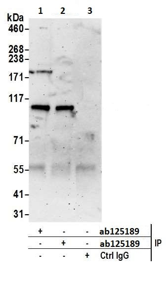 Immunoprecipitation - Anti-RNF31/HOIP antibody (ab125189)