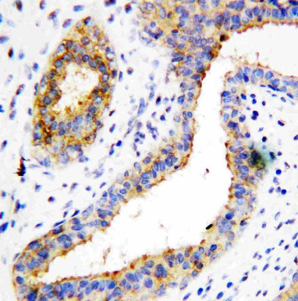 Immunohistochemistry (Formalin/PFA-fixed paraffin-embedded sections) - Anti-BCAT1 antibody (ab125209)