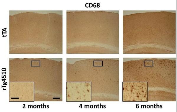 Immunohistochemistry (Formalin/PFA-fixed paraffin-embedded sections) - Anti-CD68 antibody (ab125212)