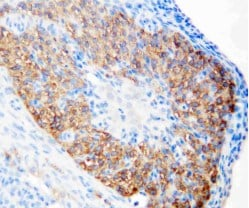 Immunohistochemistry (Formalin/PFA-fixed paraffin-embedded sections) - Anti-hCG receptor/LHR antibody (ab125214)