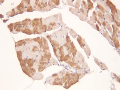 Immunohistochemistry (Formalin/PFA-fixed paraffin-embedded sections) - Anti-ADAMTS2/NPI antibody (ab125226)