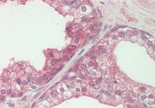 Immunohistochemistry (Formalin/PFA-fixed paraffin-embedded sections) - Anti-FENS1/WDFY1 antibody (ab125329)