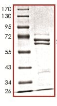 SDS-PAGE - Recombinant Human Metnase protein (ab125543)