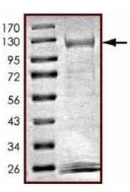 SDS-PAGE - Recombinant human NEK11 protein (ab125544)