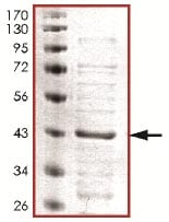 SDS-PAGE - Recombinant Human ERK1 (mutated K71 A) protein (ab125557)