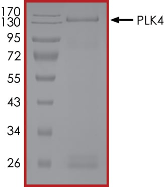 SDS-PAGE - Recombinant human PLK4 protein (ab125558)