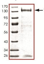 SDS-PAGE - Recombinant human TLK1 protein (ab125563)