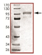 SDS-PAGE - Recombinant human GRK6 protein (ab125576)