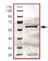SDS-PAGE - Recombinant Human Activin Receptor Type IIB/ACVR2B protein (ab125577)