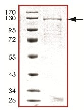 SDS-PAGE - Recombinant Human PDE6C protein (ab125587)