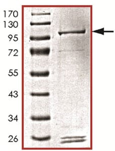 SDS-PAGE - Recombinant human PIK3C2G protein (ab125595)
