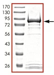 SDS-PAGE - Recombinant human GRK7 protein (ab125599)