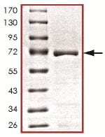 SDS-PAGE - Recombinant Mouse AATK protein (ab125617)