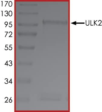 SDS-PAGE - Recombinant human ULK2 protein (ab125622)