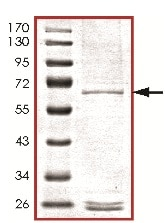 SDS-PAGE - Recombinant Human MOS protein (ab125632)