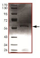 SDS-PAGE - Recombinant Human Cdk2 protein (ab125664)