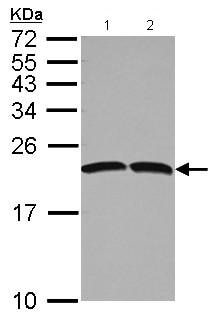 Western blot - Anti-Natriuretic peptides A antibody (ab126149)