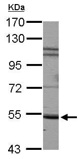 Western blot - Anti-SIRP alpha antibody (ab126157)