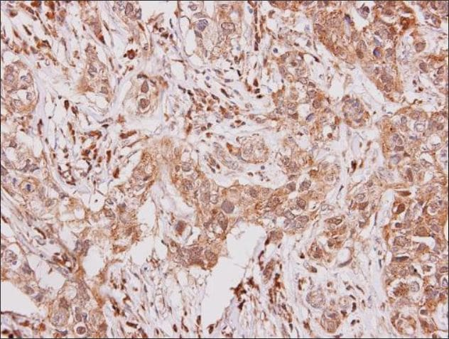 Immunohistochemistry (Formalin/PFA-fixed paraffin-embedded sections) - Anti-GCSF Receptor antibody (ab126167)